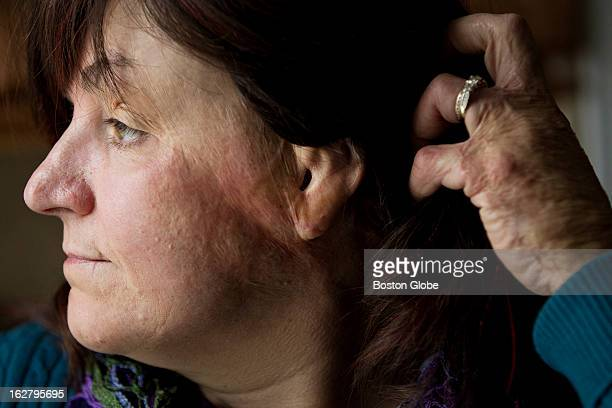 Gina Russo a survivor of the Station Nightclub fire who was badly burned is photographed in her home in Cranston RI on Monday Feb 11 2013 She has had...