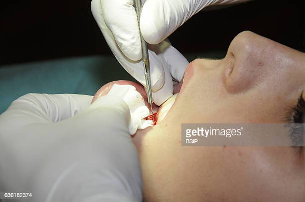 Gingival graft Preparing the gum for the graft The dentist must thin out the gum over the entire surface area to be grafted using a scalpel or a...