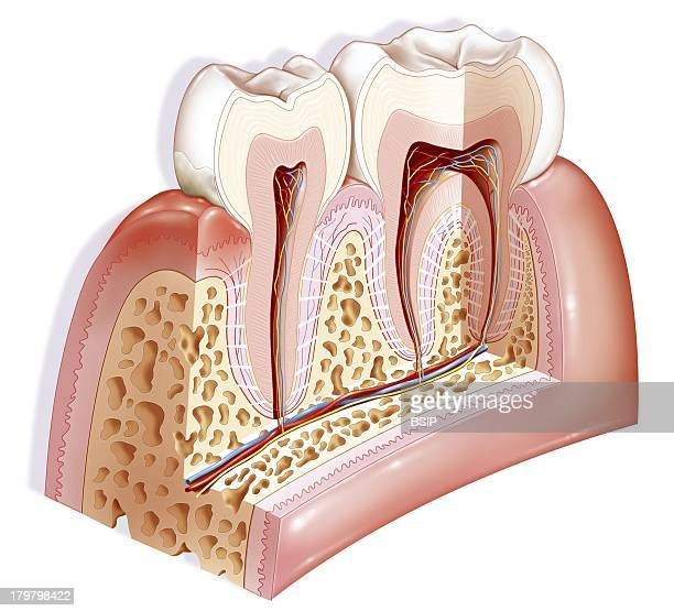 Gingivitis Drawing Main Pathologies Of The Teeth On The Left Of The Tooth Mineralized Dental Plaque Tartar Above The Plaque Gingivitis Inflammation...