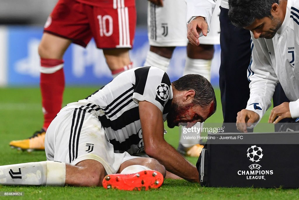 Giorgio Chiellini of Juventus injured during the UEFA Champions League group D match between Juventus and Olympiakos Piraeus at Allianz Stadium on September 27, 2017 in Turin, Italy.