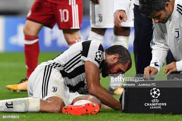 Giorgio Chiellini of Juventus injured during the UEFA Champions League group D match between Juventus and Olympiakos Piraeus at Allianz Stadium on...