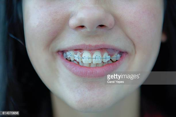 girl in white braces - brace stock pictures, royalty-free photos & images
