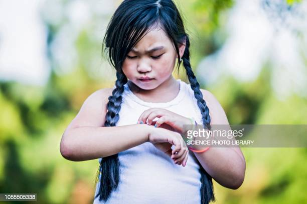 girl scratching her hand - scratching stock pictures, royalty-free photos & images