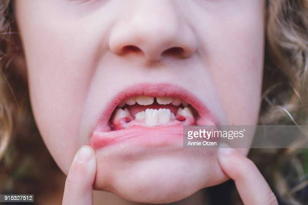 Girl showing Mouth with teeth missing