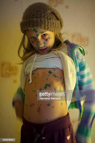 girl sic chickenpox - varicela fotografías e imágenes de stock