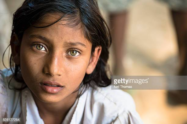 A girl suffering from malaria attends a medical clinic in Sittwe Township IDP camp Rakhine State Burma Over 100000 Rohingya Muslims were displaced...