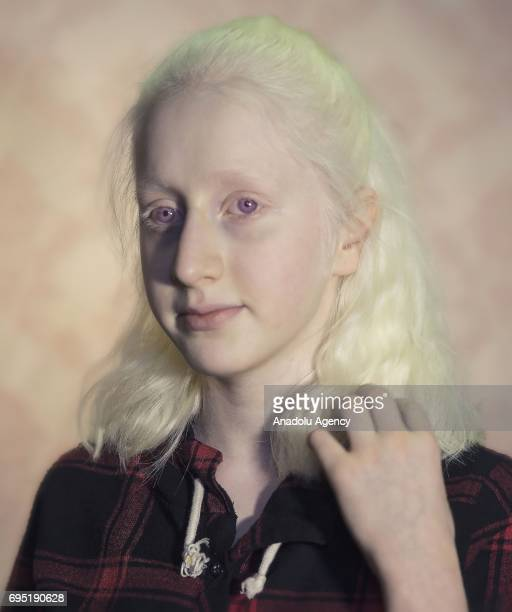 A girl with albinism Zehra Gul poses for a photo in Istanbul province of Turkey on November 24 2017 Albinos a rare group of genetic disorders that...