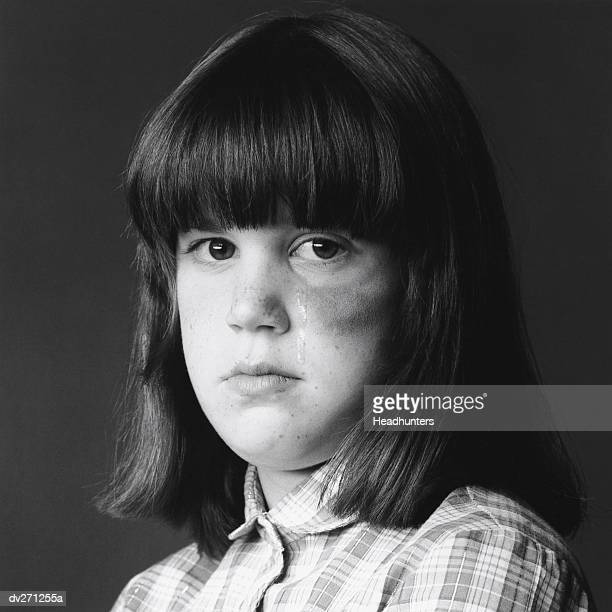 girl with black eye, crying - headhunters stock pictures, royalty-free photos & images