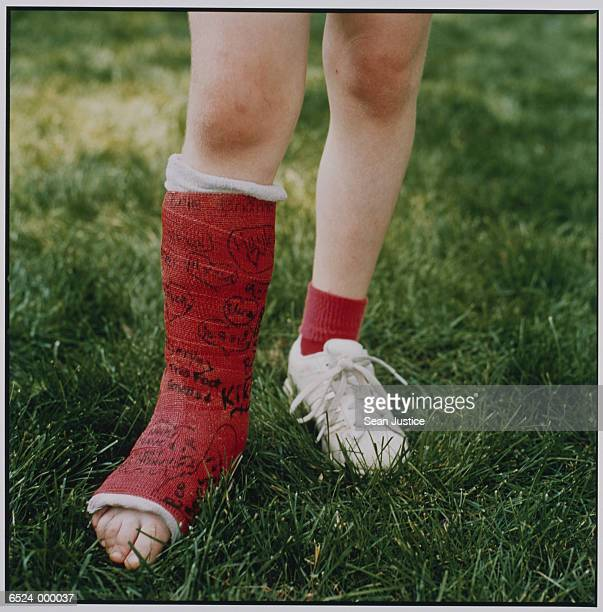 Girl with Cast on Leg