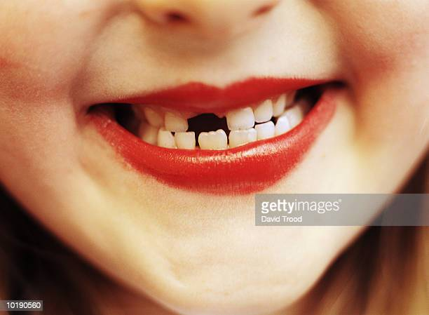girl (6-8) with missing front tooth, close-up - girls open mouth stockfoto's en -beelden