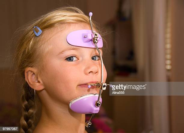 girl with orthodontics head gear - hoofddeksel stockfoto's en -beelden