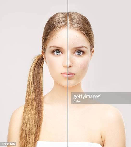 ragazza con il problema della pelle e trasparente. - acne rosacea foto e immagini stock