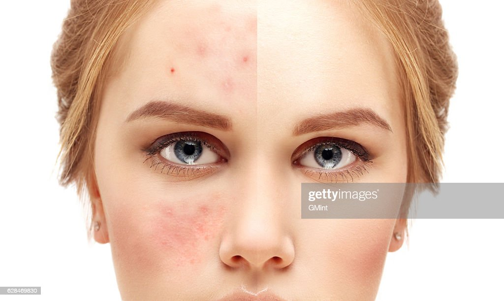 Girl  with problem and clear skin. : Stock Photo