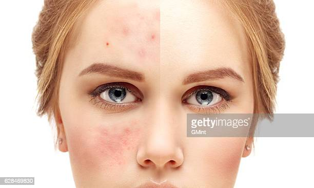 girl  with problem and clear skin. - pores stock photos and pictures