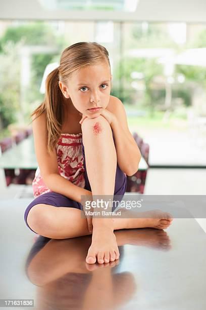 Fille avec genou usé