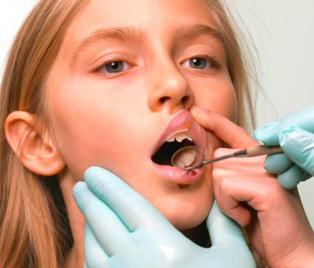 Girl wth broken tooth