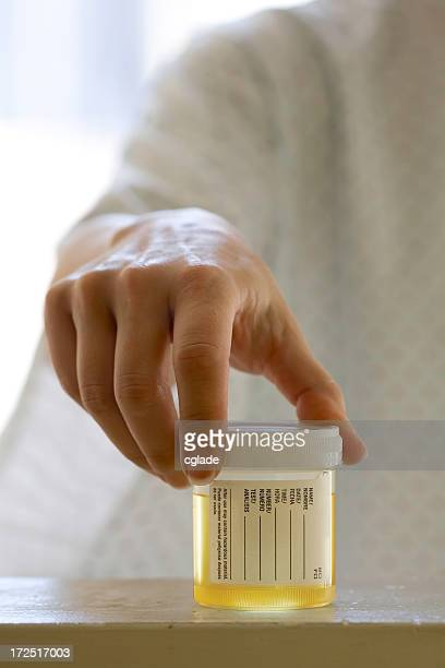 Giving a urine sample