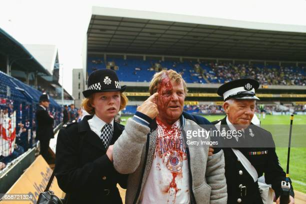 Glasgow Rangers fan shows off his injury during a pre season friendly between Tottenham Hotspur and Rangers at White Hart Lane on August 2 1986 in...