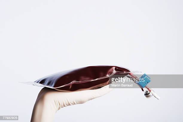 A gloved hand holding an IV bag full of blood