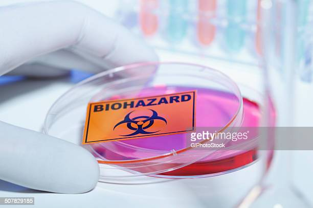 Gloved hand removing bio hazard lid from petri dish