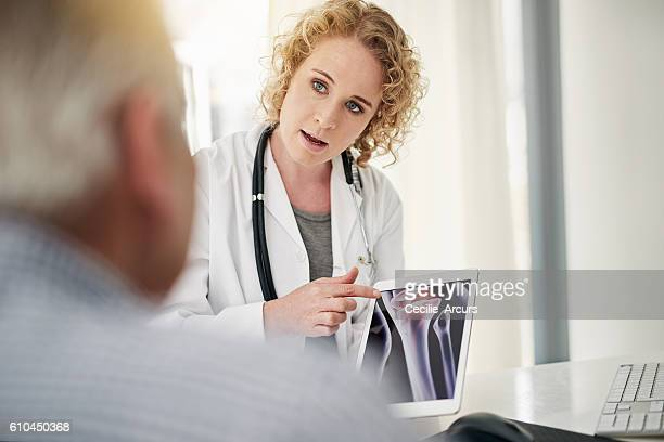 going over his test results - osteoporosis stock photos and pictures