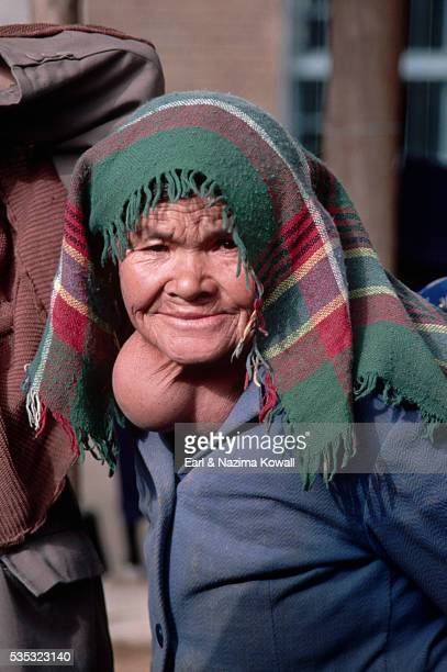 goiter on elderly uighur woman - goiter stock pictures, royalty-free photos & images