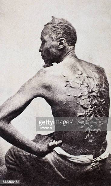 Gordon, a freed former enslaved person in Baton Rouge, Louisiana, displays his whip-scarred back on April 2, 1863. He later became a corporal in the...