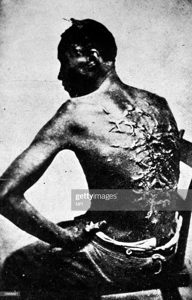 The scarred back of a black American slave after a whipping, Baton Rouge, Louisiana.