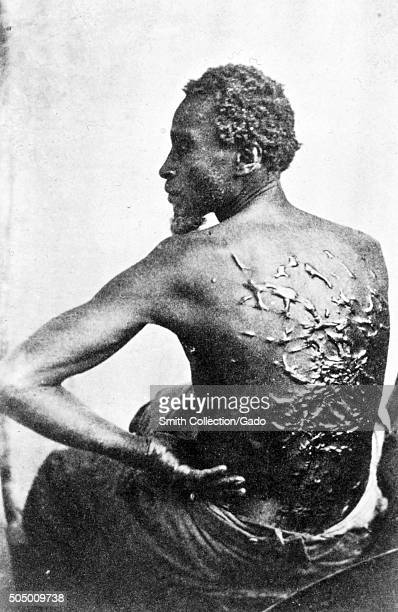 Gordon also known as Whipped Peter a former enslaved African American man shows his scarred back at a medical examination Baton Rouge Louisiana 2nd...