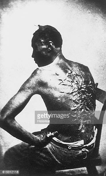 """Gordon, also known as """"Whipped Peter"""", a former enslaved man, shows his scarred back at a medical examination, Baton Rouge, Louisiana, 2nd April..."""