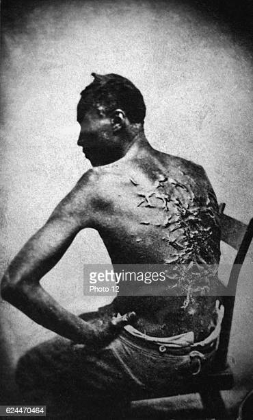 Black African Male with Scar Tissue on his Back from Being Whipped 1863