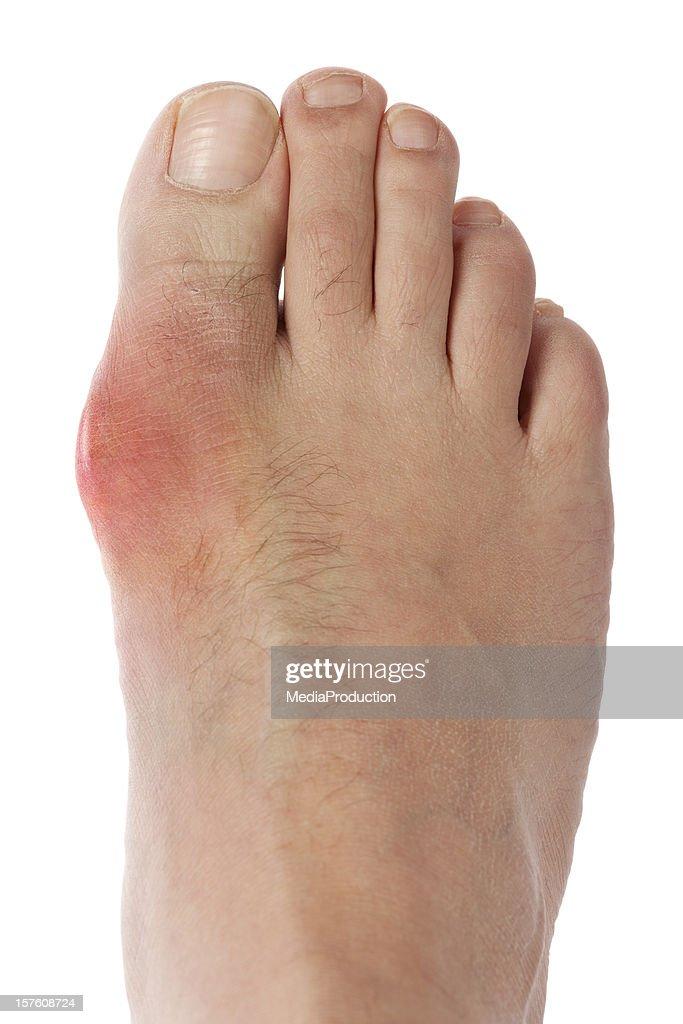 Punzadas en el dedo gordo del pie
