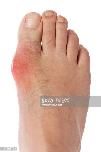 gout foot - gout stock photos and pictures