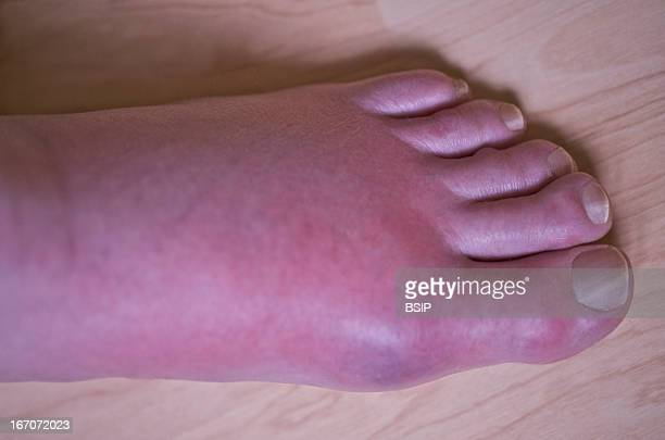 Gout Gout crisis at the level of the foot on a 65yearold man
