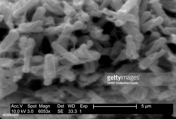 Grampositive Clostridium difficile bacteria revealed in the stool sample micrograph film 2004 Image courtesy Centers for Disease Control / Lois S...