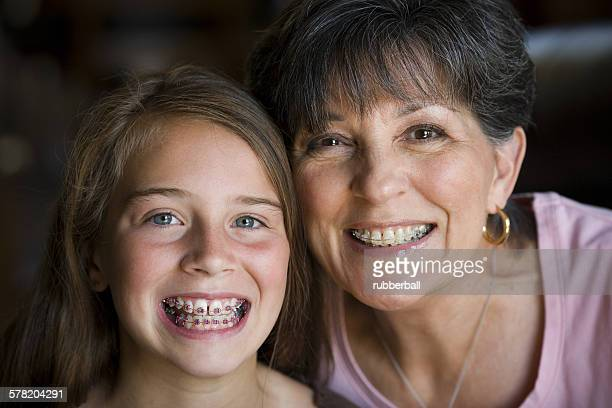 Grandmother and daughter smiling with braces