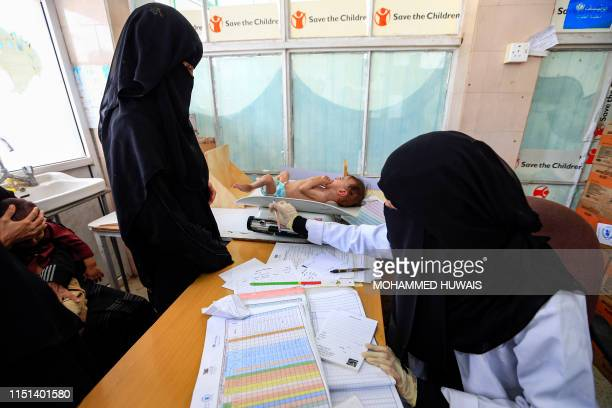 Graphic content / A child suffering from severe malnutrition is weighed at a treatment centre in the Huthirebelheld Yemeni capital Sanaa on June 22...