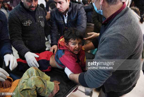 Graphic content / A child wounded following a Turkish airstrike on a village in the Afrin district receives treatment on January 28 in the Afrin...