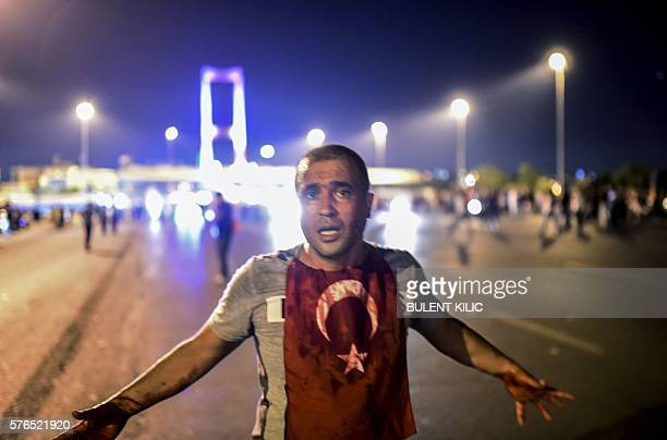 Graphic content / A man covered with blood stands near the Bosphorus bridge as Turkish military clash with people at the entrance to the bridge in...