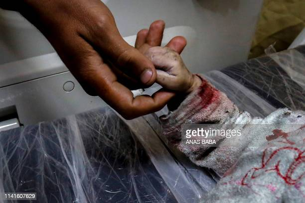 Graphic content / A man holds the hand of Maria alGazali a Palestinian baby as her body lies on a stretcher at a hospital in Beit Lahia in northern...