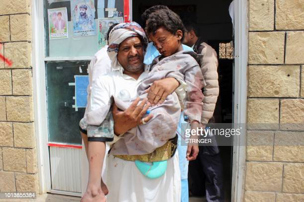 Graphic content / A man transports a child to a hospital after he was wounded in a reported air strike on the Iranbacked Huthi rebels' stronghold...