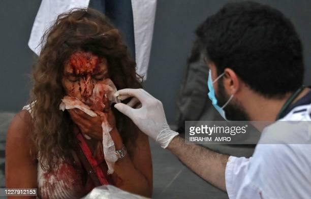 Graphic content / A medic tends to the injuries of a woman outside a hospital following an explosion in the Lebanese capital Beirut on August 4,...