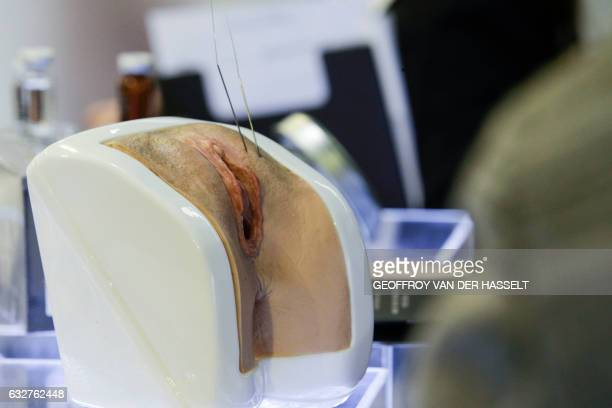 Graphic content / A picture taken at the Aesthetic science plastic surgery and cosmetic dermatology Congress in Paris on January 26 2017 shows an...