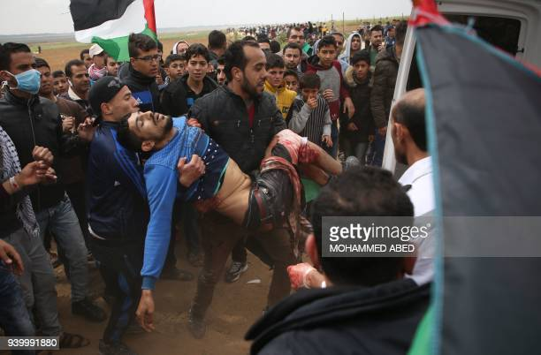 Graphic content / A picture taken on March 30 2018 shows a Palestinian youth being carried on a stretcher after being injured during a demonstration...