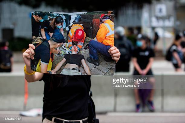 Graphic content / A protester holds up an image of a man injured during violent clashes with police as they rally against a controversial extradition...