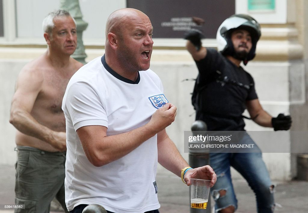 Graphic content / A supporter shows his shirt during street brawls ahead of the Euro 2016 football match England vs Russia, southern France, on June 11, 2016. Football fans fought pitched battles for the third day in the French city of Marseille ahead of England's European Championship clash with Russia. Bare-chested English and Russian supporters hurled bistro chairs and bottles in the historic Vieux-Port district where the cobbled streets were littered with broken glass and debris. MAGNENET