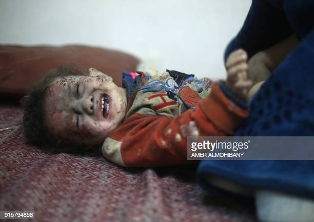 Graphic content / A Syrian baby waits to receive treatment in a makeshift clinic following air strikes in the rebelheld enclave of Arbin in the...