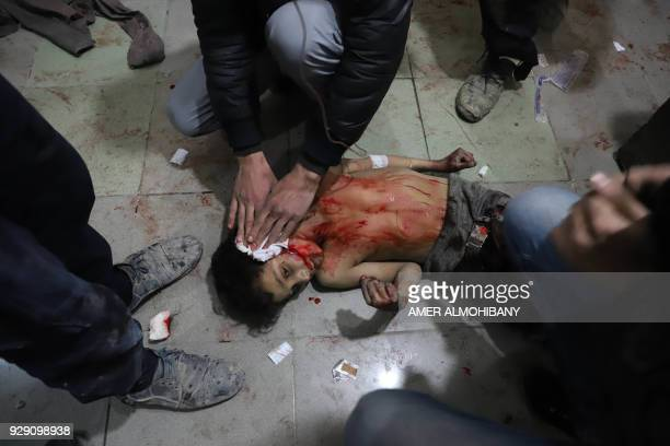 Graphic content / A Syrian boy receives first aid treatment on the floor as victims of reported regime air strikes on Hamouria Saqba and Kafr Batna...