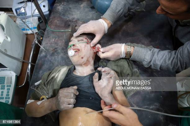 Graphic content / A Syrian boy receives medical attention at a hospital in the rebelheld besieged town of Arbin in the eastern Ghouta region on the...