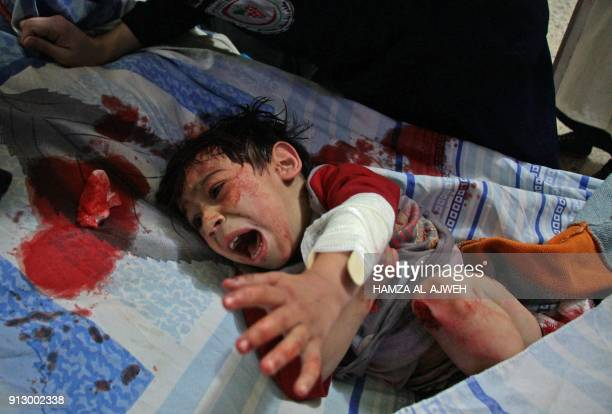 Graphic content / A Syrian child screams of pain as he gets emergency treatment at a makeshift hospital in Douma following reported bombardment by...